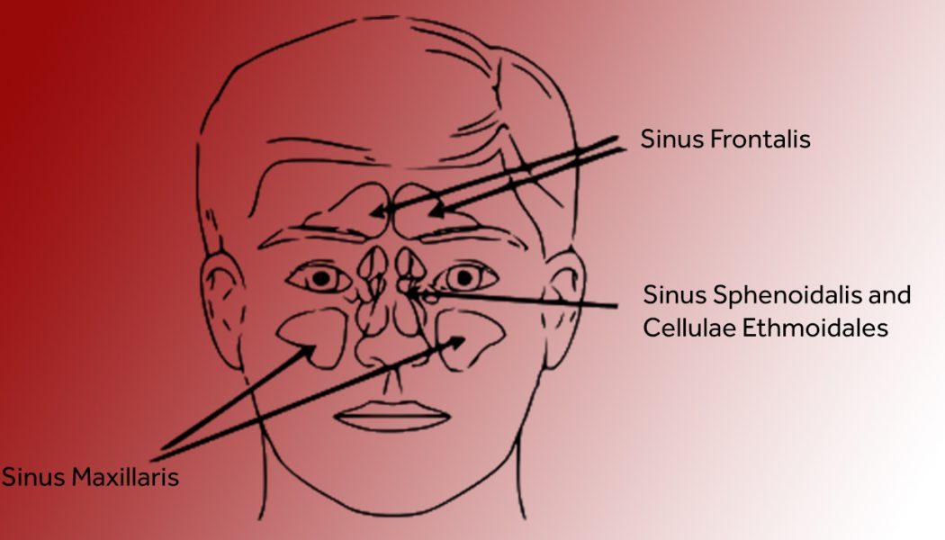 Sinus Headache – What is it?